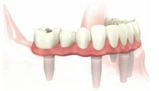 implant retained dentures gold coast