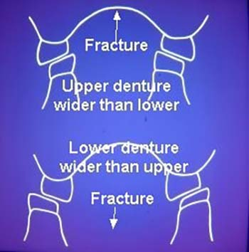 denture-repairs-gold-coast