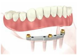 implant retained dentures gold coast