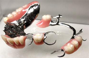 partial dentures gold coast
